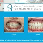 Cas clinique de traitment orthodontique du dr naoumi orthodontiste rabat